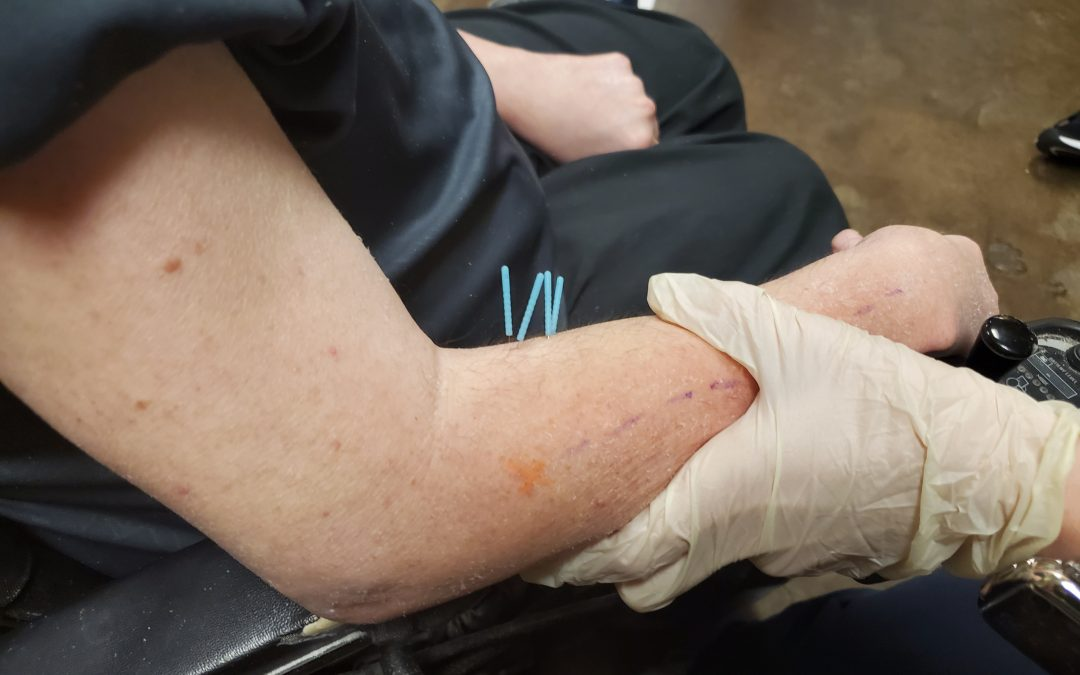 Using Dry Needling To Relieve Muscle Spasms For SMA Patients