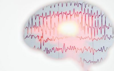 Rare Case of SMA Linked With Myoclonic Epilepsy Detailed in Report