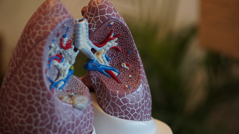 Spinraza Improves Lung Function in SMA Type 2 Child, Report Says